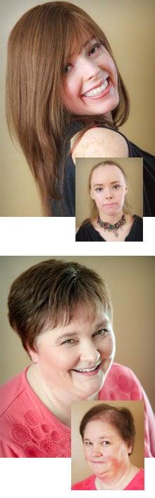 Medical Wigs. Alopecia. Chemotherapy. Comack Levittown NY