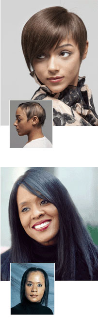 female pattern baldness. hair replacement systems. long island ny